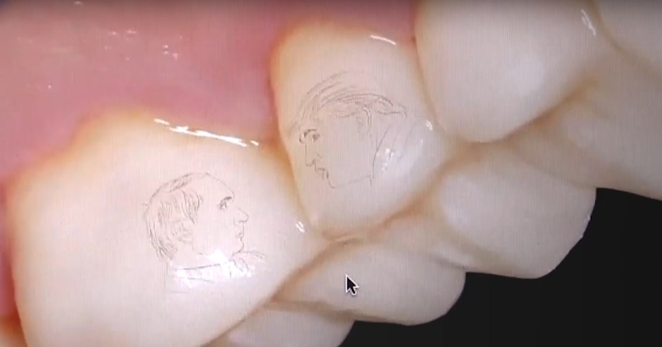 A resident of Sochi resident in Russia had profiles of Trump and Putin engraved on his teeth (Image: video capture)