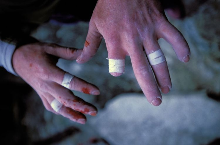Climber's bloody and beat up/taped hands missing one finger.