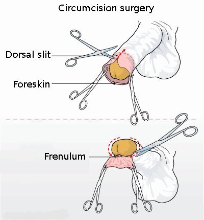 circumcised pussy before and after