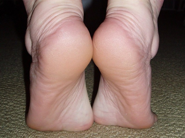 Heels and Arches Closeup