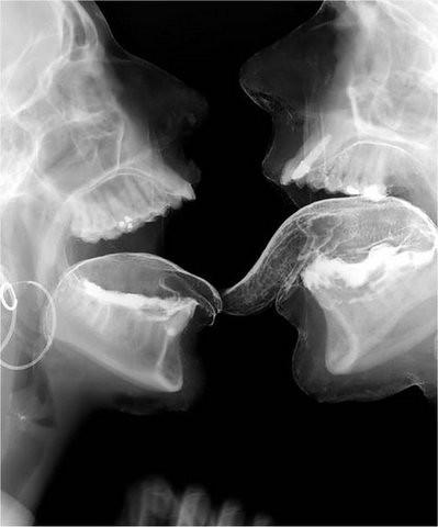 intercourse x ray