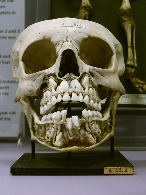 Child's skull with baby teeth and adult teeth, Hunterian Museum, London