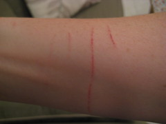 kitteh battle scars