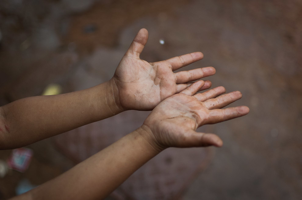 """Un niño extiende su mano para disfrutar de las gotas de lluvia en el bañado Cateura durante la campaña de construcciones de casas de emergencia de """"Un techo para mi Páis"""". (Elton Núñez - Asunción, Paraguay)"""