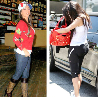 Kim Kardashian Plastic Surgery Photos Before and After