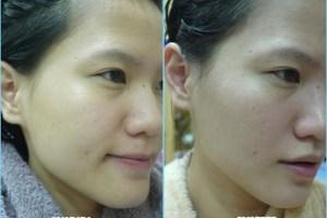 膚質週記 清水洗臉♥.膚質再度穩定!