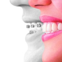 Invisalign - Review