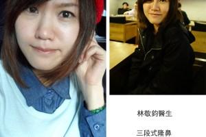 隆鼻日記|林敬鈞醫生三段式隆鼻;術後半年心得 多術前術後比較圖【2015小更新】