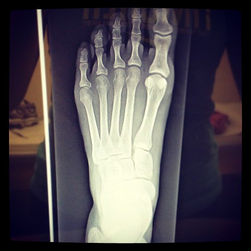 That friends is my very not broken foot!!!! So relieved. It's just a bone bruise.