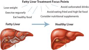 fatty_liver_treatments