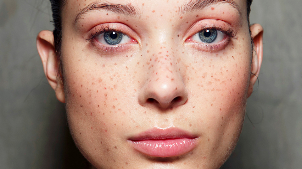 freckle-tattoos