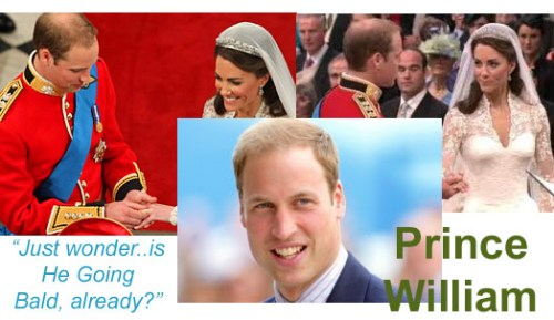 Prince William loosing his hair
