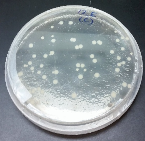 Figure 1: Culturing Staphylococcus spp. revealed species of the bacterium that are not typically pathogenic