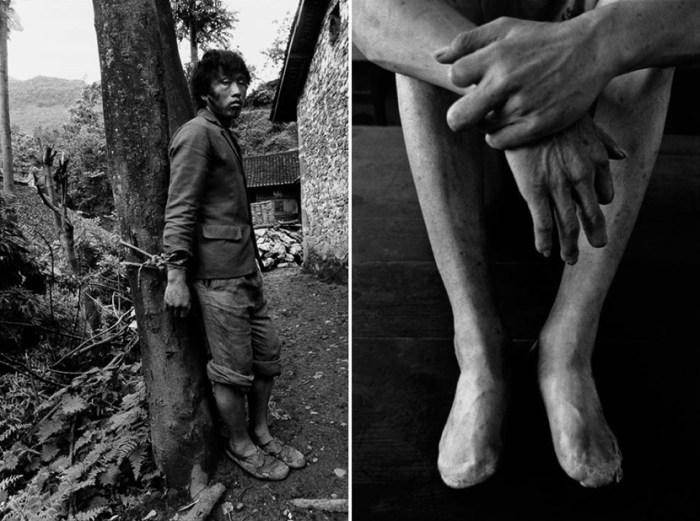圖右︰攝於天津的精神病院,雙腳屬於 45 歲的陳金銘,由於當年病發時長時間待在雪中,部份手指和腳趾都壞死了。