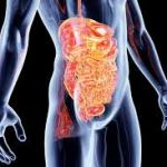 Leaky Gut: Is it Becoming an Epidemic?