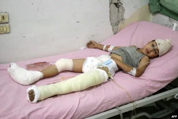 Цього хлопчика вдалося витягти з-під уламків будівлі після ударів авіації Росії. Алеппо,12 жовтня 2016 року