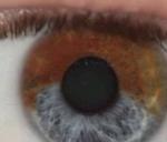 Lumineye, una nueva tecnología que transforma los ojos marrones en azules