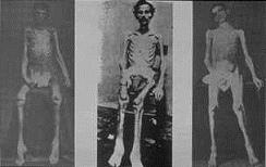 Andersonville 1865, Überlebende des Wiesenlagers bestehen nur noch aus Haut und Knochen