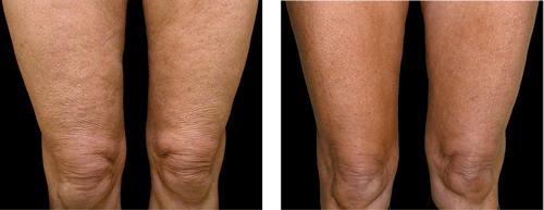 estetika-skin-laser-specialists-thermage-legs