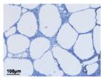 IA fat cells