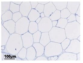 SC fat cells