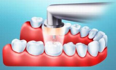 лечения зубов от кариеса
