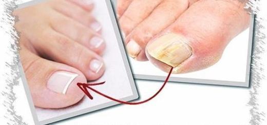Самый действенный способ лечения грибка ногтей