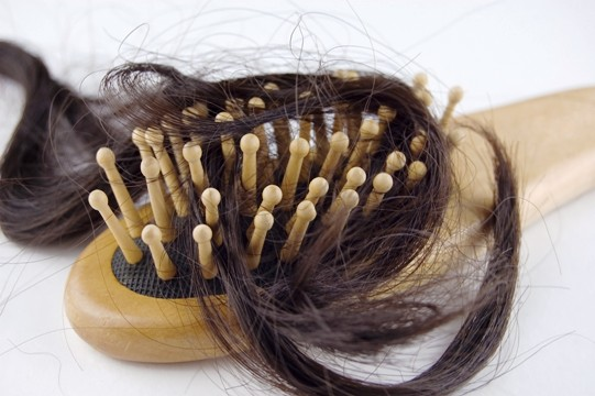 Hair Loss: Facts and Causes