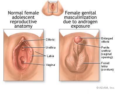 black clitoris
