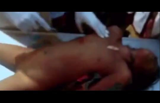 【超閲覧注意】レイプ後殺された推定10歳の少女の解剖映像 ※無修正