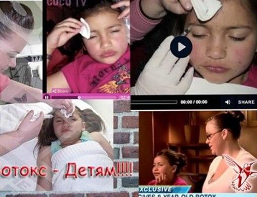 【微グロ】イギリスの母親が8歳の娘の顔面を整形しまくった結果・・・