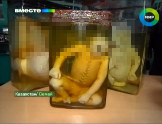 【閲覧注意】核実験が行われた地域で生まれた赤ちゃんがヤバい