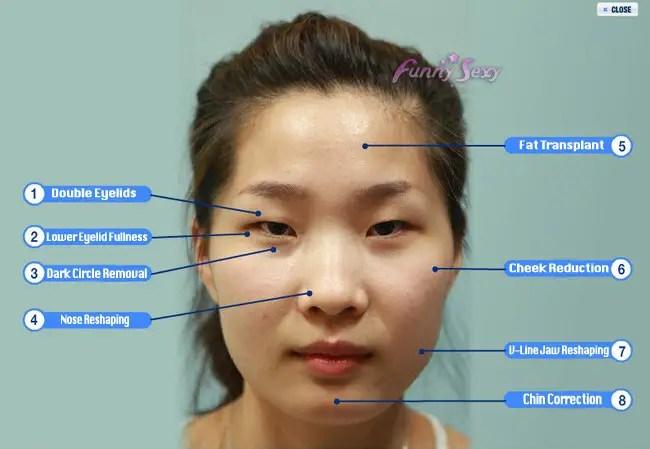 plastic surgery in korea