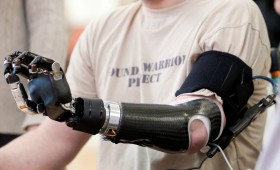 Revolutionary prosthetic arm developed by APL