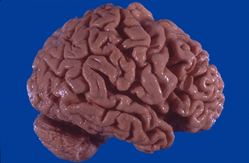 Brain Can Literally Shrink, Study Finds