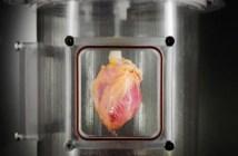 liječenje srca matičnim ćelijama
