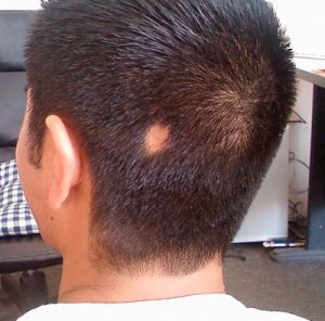 alopecia-areata-hair-loss-cure