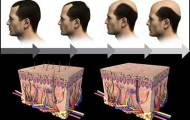 balance-hormone-reverse-hair-loss-01