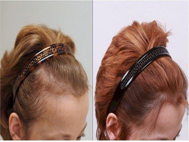 Alvi Armani women hair transplant