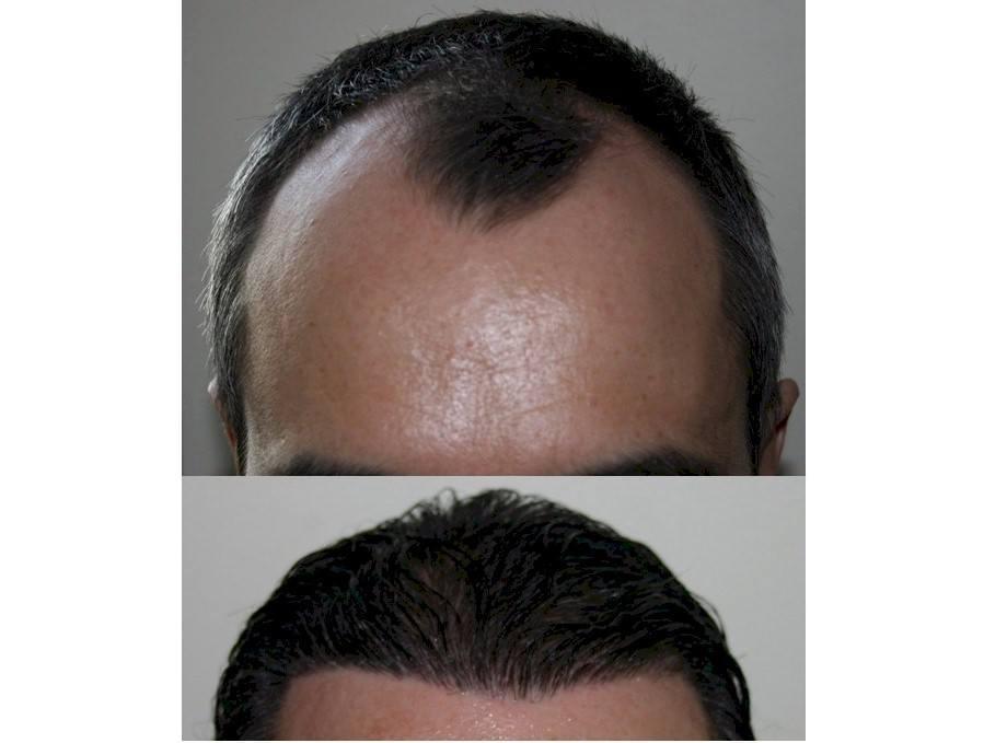 dr baubac hair transplant results