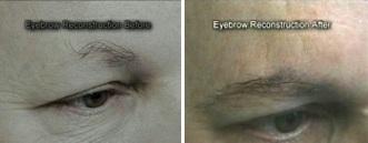 Dr Woods Eyebrow Transplant
