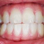 歯周病が循環器疾患にも関係があるって