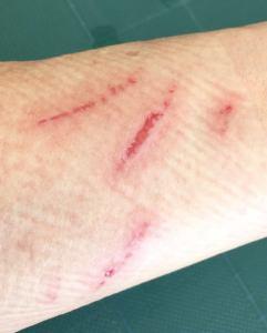 傷があってもあきらめない!化粧が出来る絆創膏はるコスメ 傷用