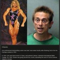 Naisen 20 vuoden steroidienkäytön järisyttävä lopputulos - Katso kuvat