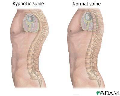 kyphosis Stand Up Straight...your posture is making you look short and fat