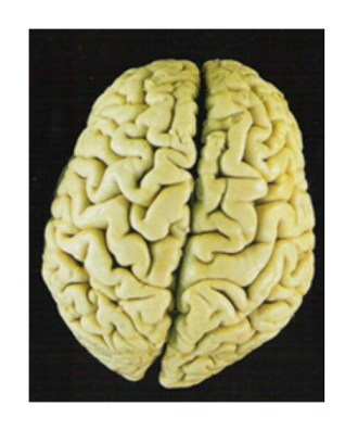 brain healthy Is Your Diet Giving You Alzheimers Disease?
