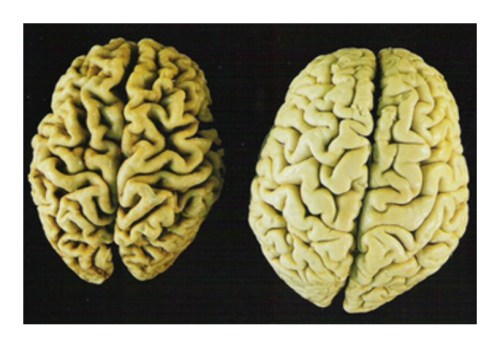 brains Is Your Diet Giving You Alzheimers Disease?