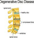 Degenerative-Disc-Disease-Cartoon
