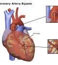 coronary arterior