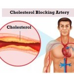 Difference Between Good Cholesterol and Bad Cholesterol